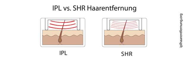 SHR Haarentfernung im Vergleich zu IPL Haarentfernung
